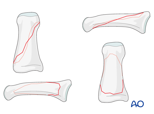Fractures of the diaphysis can be transverse, oblique, or comminuted.