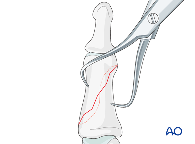 Direct reduction is necessary when the fracture can not be reduced by traction and flexion, or is unstable.
