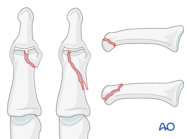 Unicondylar fractures of the middle phalanx can be transverse, short or long oblique, or comminuted.