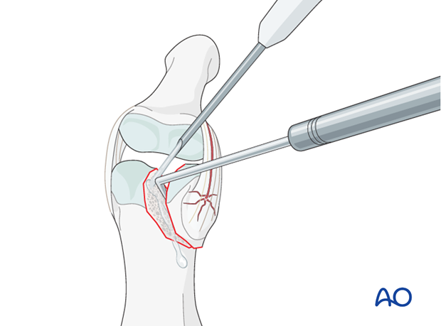 In order to gain a better view of the fracture, use a syringe to irrigate out blood clots with a jet of Ringer lactate.