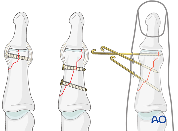 Different types of treatment are available for the various fracture types.