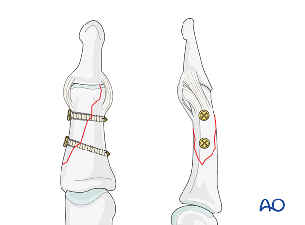 In large fragments, all screws can be placed safely proximal to the collateral ligament of the DIP joint.
