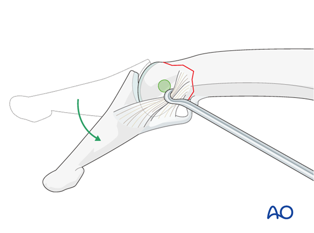 Approach the outer surface of the phalangeal head by flexing the DIP joint.