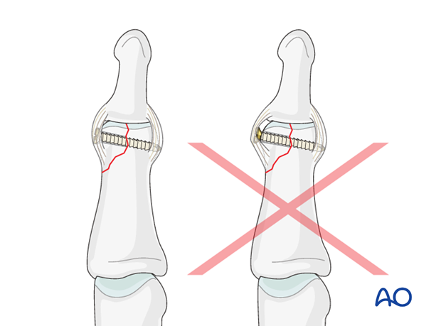 A protruding screw head can cause ligament irritation and eventual joint stiffness.