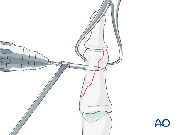 Leaving the reduction forceps in place, drill a gliding hole as perpendicularly to the fracture plane as possible, using a ...