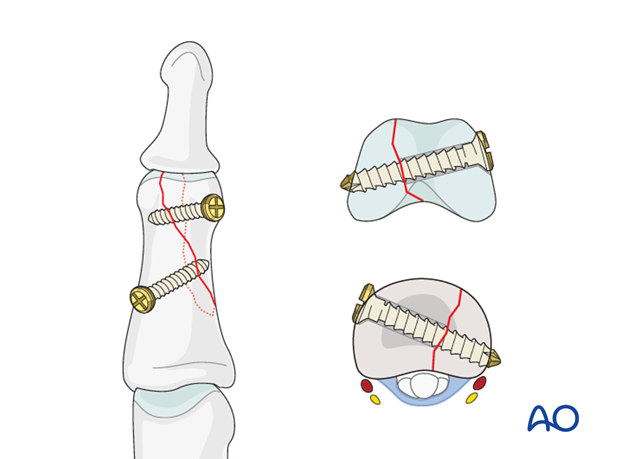 Hastings and Weiss described a fracture type in which the fracture plane changes between the condylar and metaphyseal zones.
