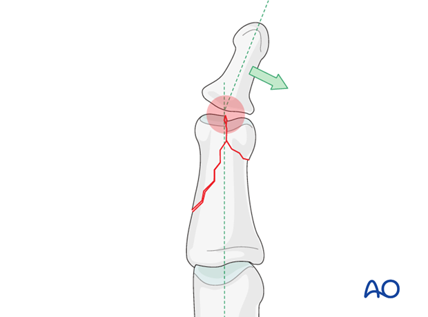 This illustration shows how even slight unicondylar depression may lead to angulation of the finger.