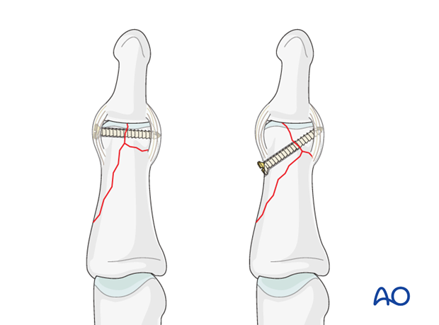 The position of the distal screw depends on the geometry of the fracture line which separates the condyles, and the size ...