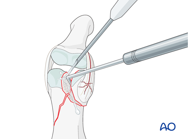 In order to gain a better view of the fracture, use a syringe to irrigate out blood clot with a jet of Ringer lactate.