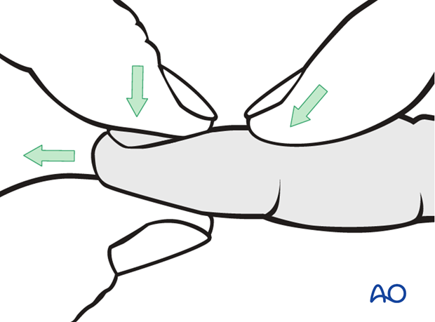 If the joint is stable after reduction, nonoperative treatment is usually indicated.