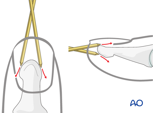 Due to the conical shape of the tip of the distal phalanx, there is a risk of slippage of the K-wire, either in a lateral, ...