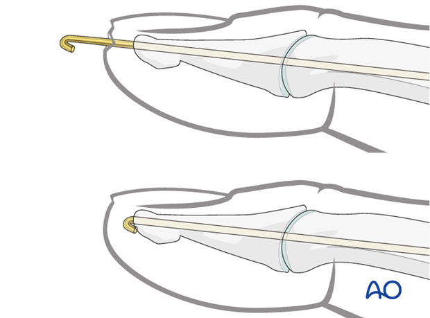There are two methods for completing K-wire fixation. Each method has its advantages and disadvantages.