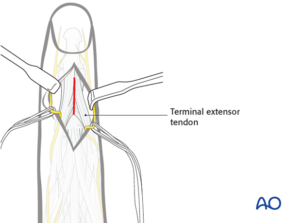 Make a longitudinal incision through both the terminal extensor tendon and its triangular ligament, taking care to preserve ...