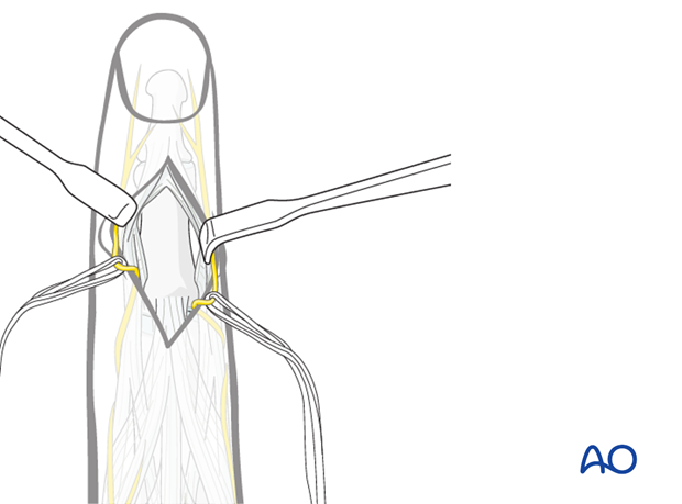 After incising the terminal extensor tendon and its triangular ligament, two small retractors are used to expose the bone.