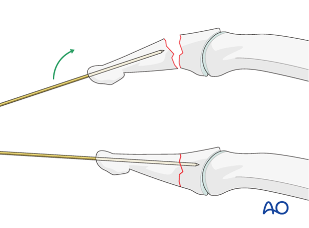 A K-wire can be introduced through the tip of the distal phalanx and advanced not quite up to the fracture line. ...