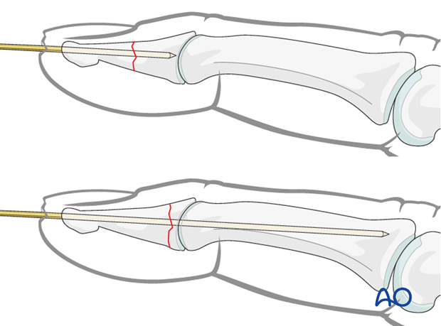 The K-wire is advanced across the distal phalanx up to the DIP joint.