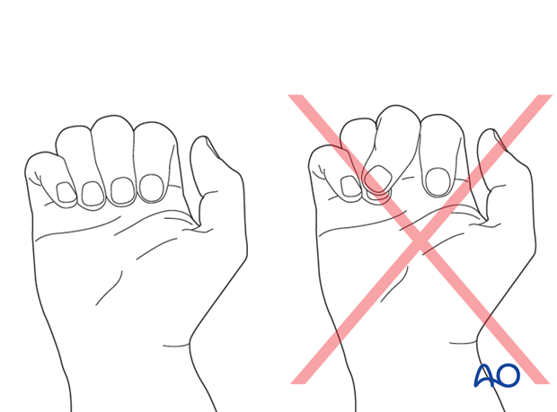 Turn the hand over and flex the fingers passively  to check for correct rotational alignment.