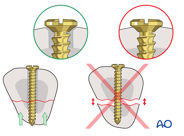 Be sure to insert the screw as a lag screw, with a gliding hole in the near (cis) cortex, and a threaded hole in the ...
