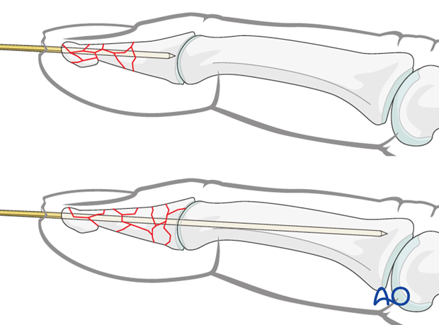 The K-wire is advanced through the distal phalanx up to the DIP joint.