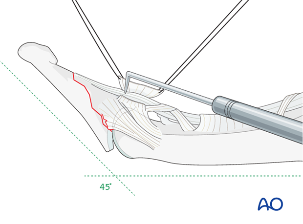 Gently use a dental pick to reduce the fracture accurately.