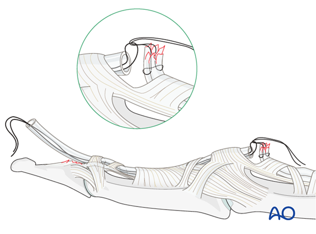 If the tendon has retracted to the PIP joint, the zigzag incision has to be extended to the PIP joint.