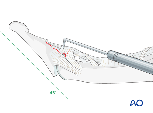 Reduce the small bony fragment with a dental pick and hold it in place.