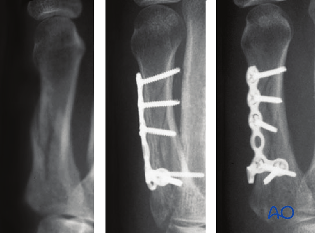 These fractures tend to be unstable, and bone healing is often prolonged. Internal fixation allows for anatomical reduction, ...