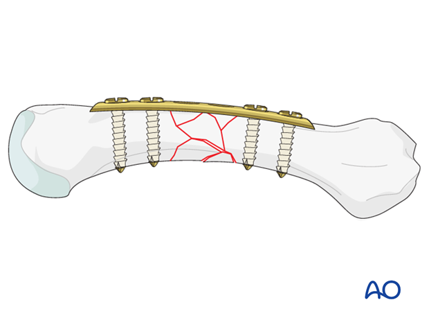 Bridge plating uses the plate as an extramedullary splint fixed to the two main fragments, while the complex fracture zone ...