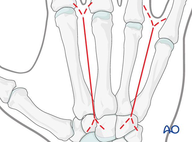 When multiple metacarpals are injured, restoration of length and rotation is difficult. If one of the finger metacarpals is ...