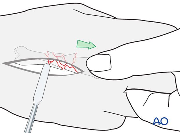 The fracture is reduced by using longitudinal traction on the finger, manually, using a finger trap, or with pointed reduction f