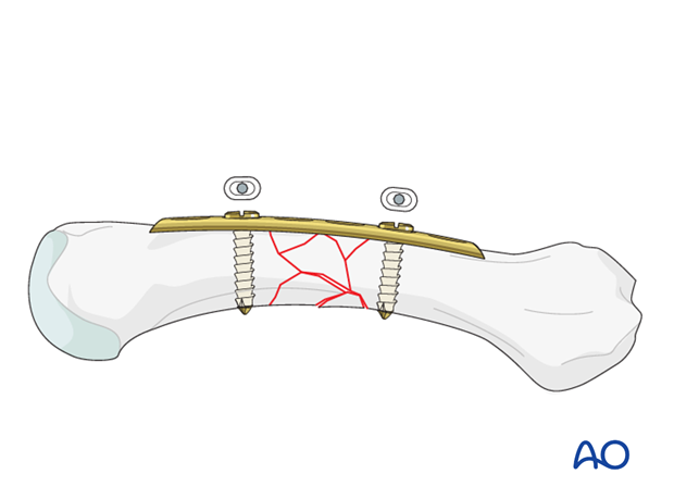 Make sure that the plate is correctly aligned in the longitudinal axis of the metacarpal. Insert a second neutral screw into ...