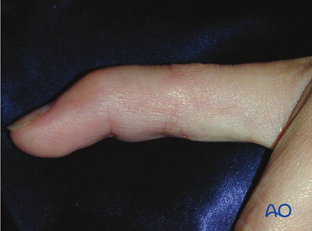 "Discontinuities of the extensor insertion are often referred to as ""mallet injury"" or ""baseball finger""."