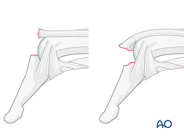 A similar clinical picture is presented by bony avulsion of the extensor mechanism at its insertion.