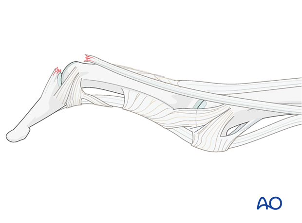 In some patients, elasticity of the ligaments and a lax PIP joint can result in swan-neck deformity, because after ...