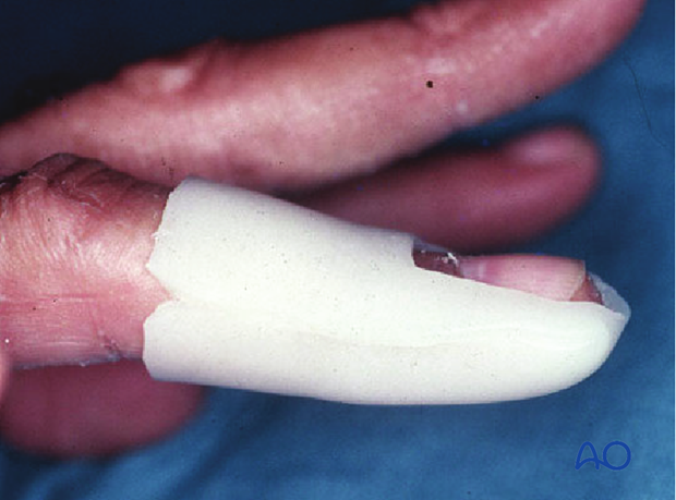 The advantage of a custom thermoplastic splint is ...