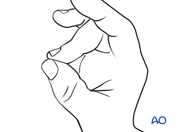 Instruct the patient to keep the finger in extension by pinching it with the thumb when the splint is taken off for ...