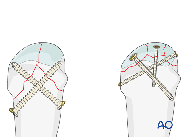The fractures can usually be treated with screw fixation.