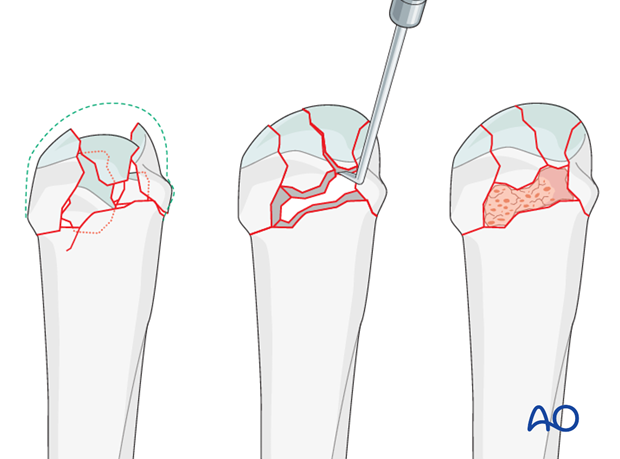 In impacted fractures, the articular surface is reduced, and the bony defect under the fragments is filled with bone graft ...