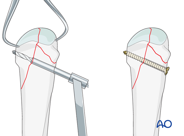 If the fragments extend to the metaphyseal region, bicortical lag screws can be used.