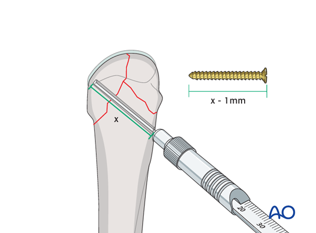 Measure for correct screw length using the appropriate depth gauge.