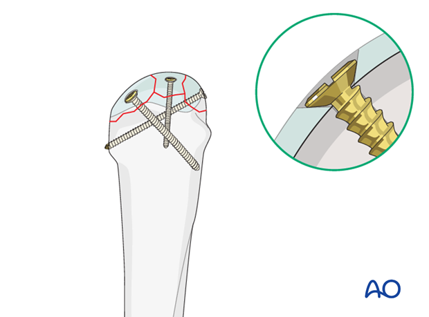 Carefully insert the screw without displacing the reduced fragments. Make sure that the screw head is buried in the ...