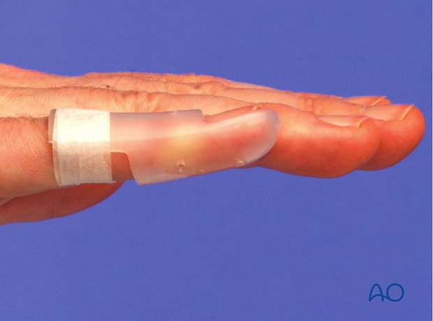 The advantage of a custom thermoplastic splint is that it is better adapted to the shape of the finger, and easier to change.