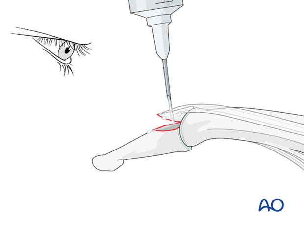 In order to gain better visualization of the fracture, use a syringe to clean out blood clots with a jet of