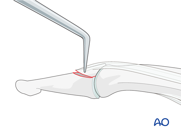 Complete the reduction with help of a dental pick.