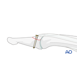 distal phalanx base dorsal avulsion