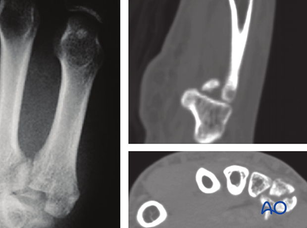 These fractures are usually fixed with plates, or K-wires in the case of small fragments, and may need bone grafting.