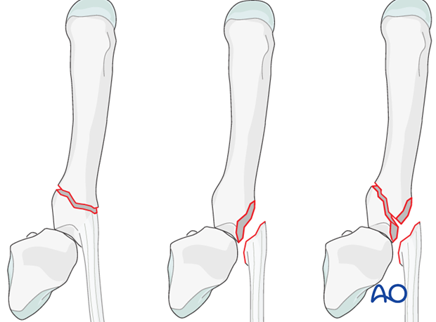 Depending on the fracture geometry, simpler fractures can be treated with lag screws ...