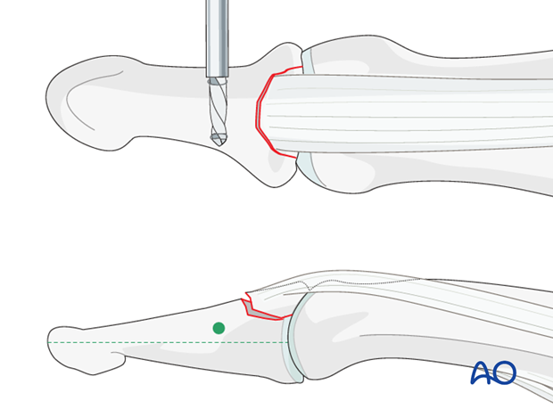 The drill hole must be located dorsal to the mid-axis of the distal phalanx.