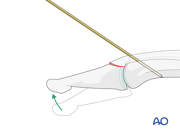 Carefully reduce the fracture by extending the DIP joint.