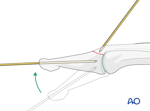 Use the axial K-wire as a joystick to extend the DIP joint and to reduce the fracture.